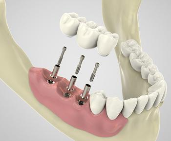Implant dentaire Montluçon